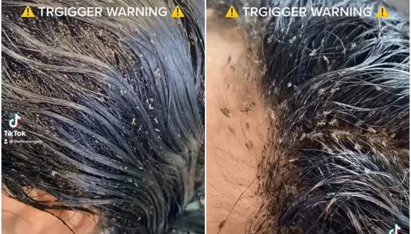 Se vuelve viral impactante video de niña con más de 15 mil piojos en su cabeza. (Foto: @theliceangels / TikTok)