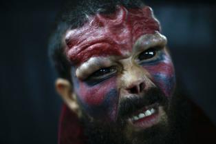 Viral: joven se opera rostro para parecerse a villano de historietas