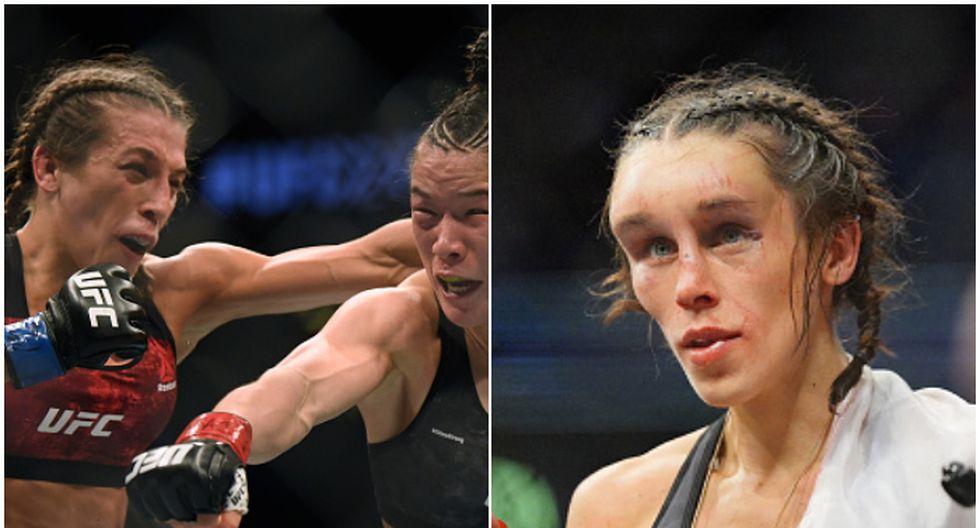 Así luce el rostro de una peleadora de UFC que sufrió escalofriante hematoma en su último combate. (Getty Images)