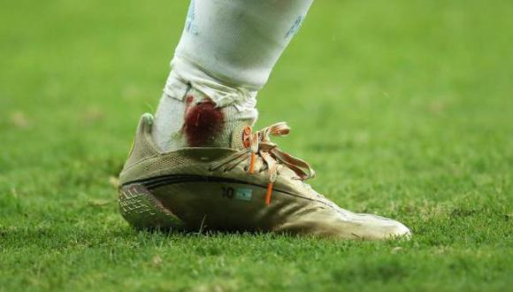 Así terminó el tobillo de Messi en el Argentina vs Colombia por Copa América. (Foto: Twitter)