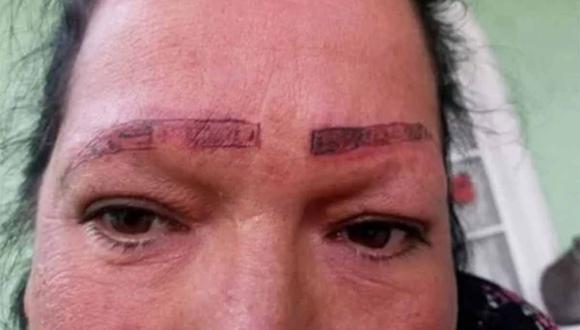La joven denunció el pésimo procedimiento que recibió su madre durante un proceso estético.  | Foto: Teresita Cruz/Facebook