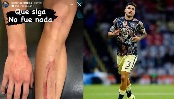 La herida en la pierna de Jorge Sánchez luego del clásico ante Chivas. (Foto: Instagram)