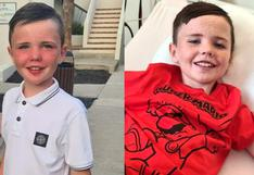 Niño escocés de 9 años se salva de morir por seguir un reto viral con imanes en Tik Tok