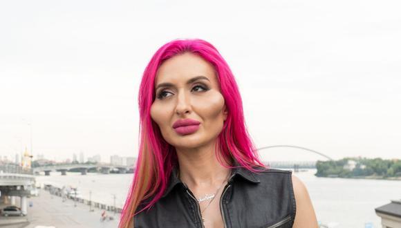 Anastasia Pokreshchuk es una modelo de Instagram que quiere convertirse en la mujer con los pómulos más grandes del mundo (Foto: Instagram)