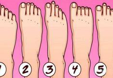 ¿Cómo son los dedos de tu pie? Tu respuesta revelará rasgos ocultos de tu forma de ser [FOTO]