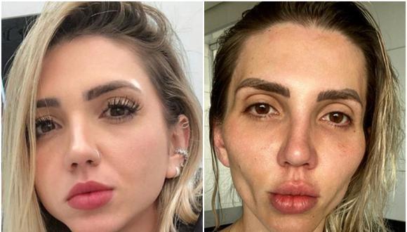 Una influencer brasileña se arrepiente de cirugía que se hizo en el rostro. (Foto: @eusoufrozza / Instagram)