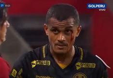 Se deja todo en el campo: Nelinho Quina se cortó el párpado y salió ensangrentado del campo de juego [VIDEO]