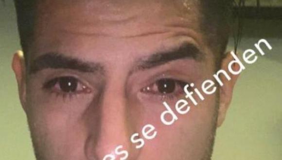 Carlos Zambrano compartió una foto de como quedaron sus ojos tras los incidentes en el Mineirao. (Foto: Instagram)