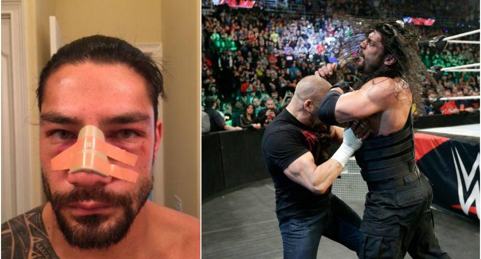Roman Reigns se operó la nriz, pero no porque Triple H se la rompió. (WWE/Twitter)