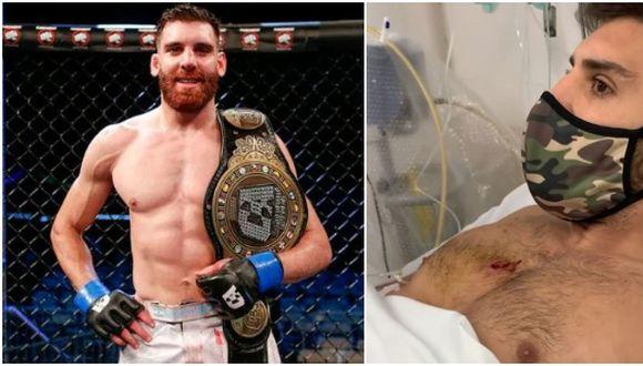 Campeón de MMA recibió un balazo en el pecho tras frustrar robo de su moto en Argentina. (Twitter/Instagram)